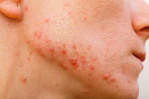 Natural Way To Get Rid Of Acne Rosacea